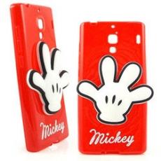 Disney Xiaomi 紅米機 時尚手套造型捲線保護套